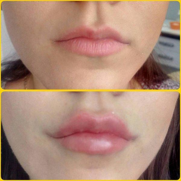 Увеличение губ с помощью биополимера (биогель) — отзывы