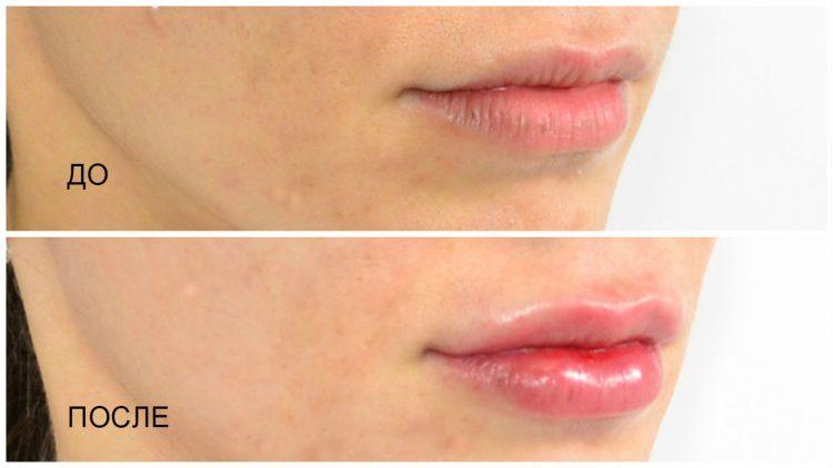 Увеличение губ с помощью препарата гиалуроновой кислоты — отзывы
