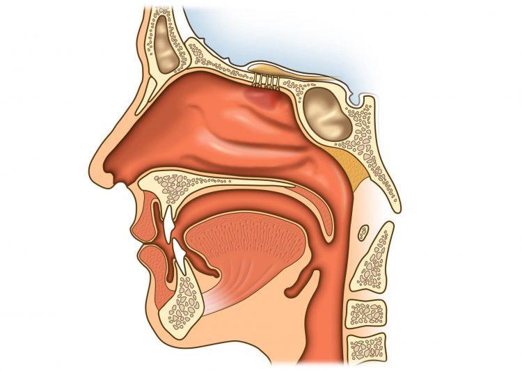 Конхотомия — частичное или полное удаление слизистой оболочки носа — отзывы