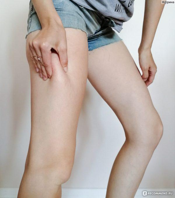 Средства в борьбе с целлюлитом и растяжками — отзывы