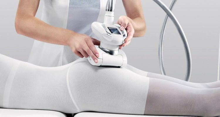 LPG массаж — отзывы