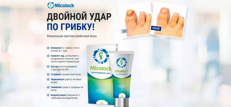 Средство от грибка ногтей и кожи Торг-Сервис «Миколок» — отзывы