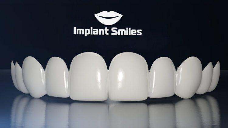Съемные виниры Implant Smile — отзывы