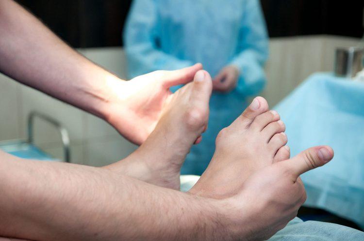 Операция по удалению косточек у большого пальца — отзывы