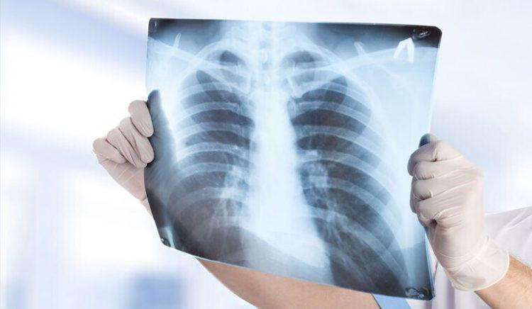 Флюорография органов грудной клетки — отзывы