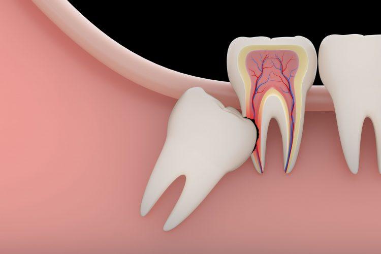 Удаление зуба мудрости — отзывы